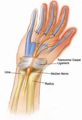Carpal Tunnel Syndrome NYC Carpal Tunnel Treatment NYC