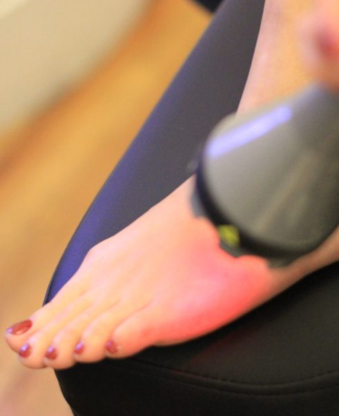 plantar fasciitis treatmnet in manhattan | The foot pain experts use hot laser and cold laser therapy to help treat pain in the fascia of the foot