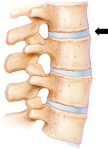 A illustration of a disc and the cause of back pain from herniated discs or injury to the back, back pain nyc