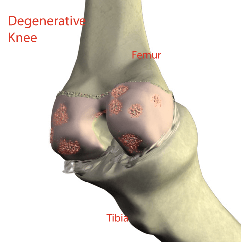 knee pain supartz injection.  Example of a degenerative knee that has damage to the joint