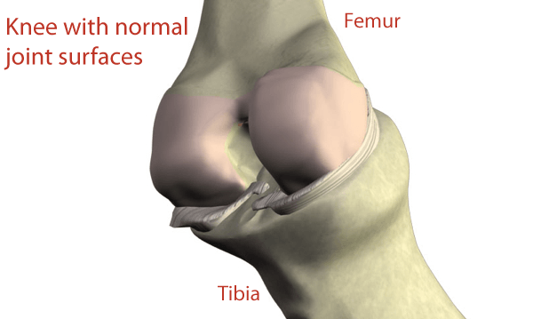 knee supartz injections. Example of a knee with normal joint surfaces